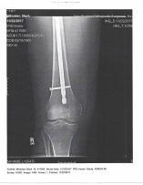 Mark's Right Leg X-ray-3