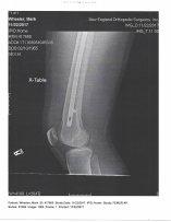 Mark's Right Leg X-ray-4